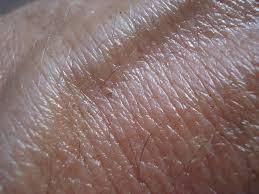Könnyen megfigyelhetőek a bőrrák tünetek